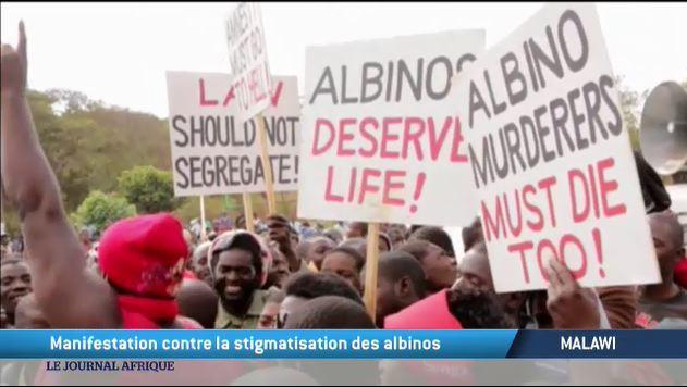 Manifestation contre la stigmatisation des albinos au Malawi